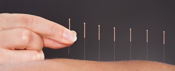 L'acupuncture : une pratique efficace ?